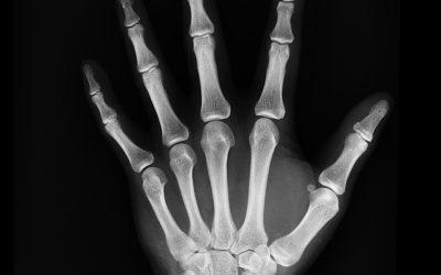 8. Knochenbrüche